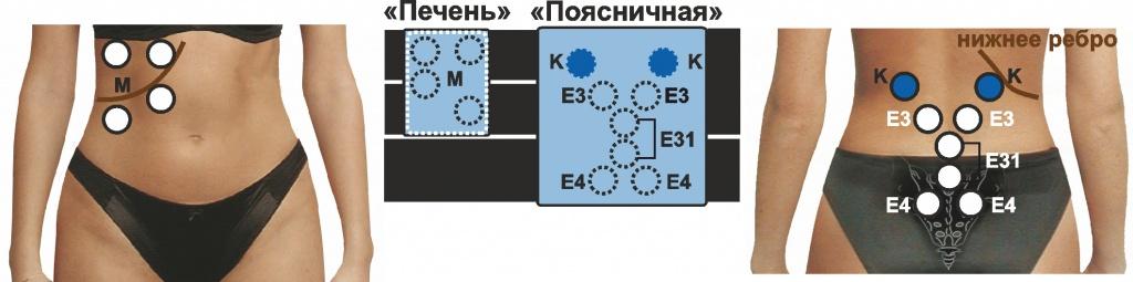 Корсет и области на теле.jpg